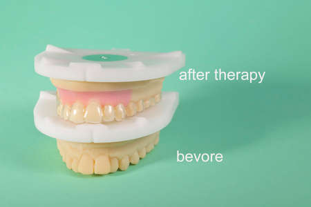 models for correction splint before and after therapy
