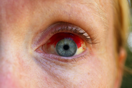 Close up a a caucasian womens blue eye with a Subconjectival Hemorrhage, or broken blood vessel.