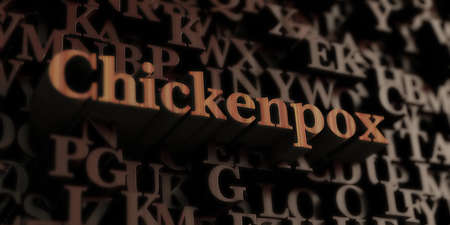 chickenpox: Chickenpox - Wooden 3D rendered lettersmessage.  Can be used for an online banner ad or a print postcard. Stock Photo