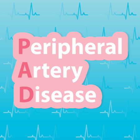PAD (Peripheral artery disease) concept - vector illustration 矢量图像