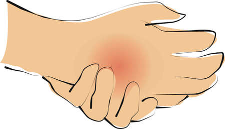 deformity: hand is red swelling and pain Stock Photo