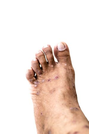 Hand foot mouth syndrome, Skin allergy with dermatitis problem of rash ,Allergy rash and Health problem