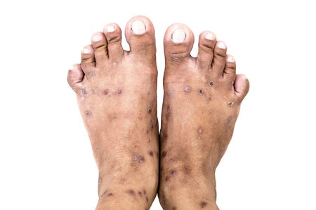 Hand foot mouth syndrome, Skin allergy with dermatitis problem of rash, Allergy rash and Health problem