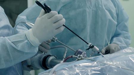 Laparoscopic surgery of the abdomen. The team of medical specialists conducting laparoscopic surgery.