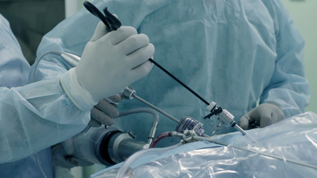 Laparoscopic surgery of the abdomen. The team of medical specialists conducting laparoscopic surgery.