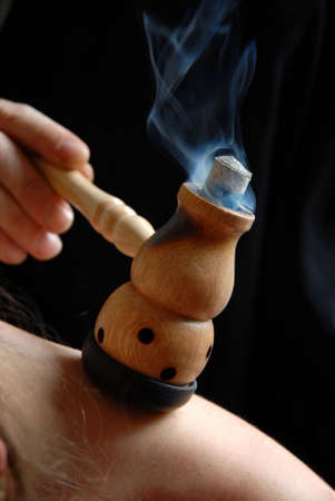 Althernative Therapy: the doctor uses moxa pipe for treatment of the patient Stock Photo - 4866641
