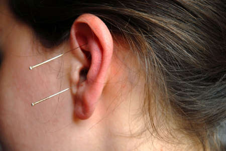 needles applicated in the ear for treatment of the patient photo