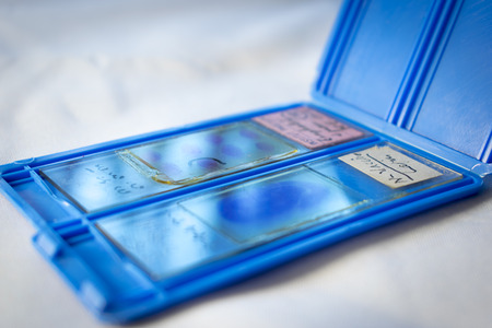 bacteria cell: Transport case for vintage microscope slides Stock Photo