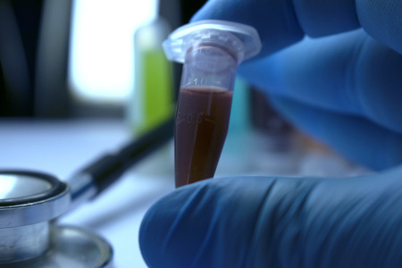 gloved: Gloved Hand Holding Research Vial, Stem Cell Research Substance in Vial