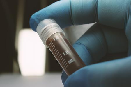 연구용 유리 병, 유리 병의 줄기 세포 연구 물질을 보유하고있는 낀 손