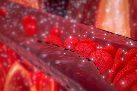 Cholesterol plaque in artery, Blood vessel with flowing blood cells, 3d rendering