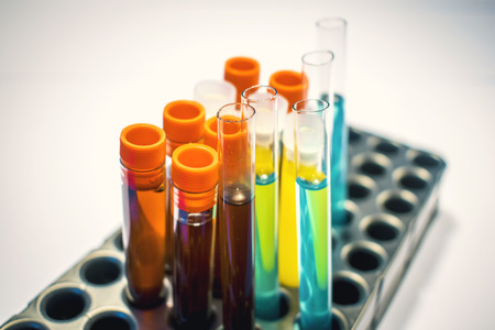 colorful laboratory test tubes, biochemistry blood tests, urine test,  tests tube, medical analysis, research concept, fertility research, stem cell fluids