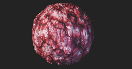 Cancer Cell Oncology concept cancer tumor cyst carcinoma lymphoma colon cancer brest cancers  3d rendering
