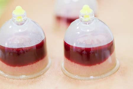 Hijama - die Behandlung von Aderlass. Angebauter Vakuumsauger. Blut füllt sich in die Tasse. Standard-Bild