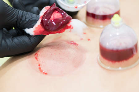 Close up of young person doing hijama treatment. Blood cleaning process. Imagens