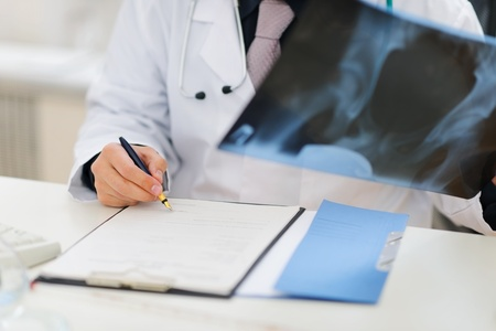 Closeup on medical doctor holding patients roentgen and making note in clipboard photo