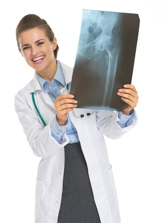 roentgen: Smiling doctor woman looking out from fluorography