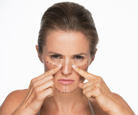 Woman with plastic surgery marks on face pointing on nose Stock Photo