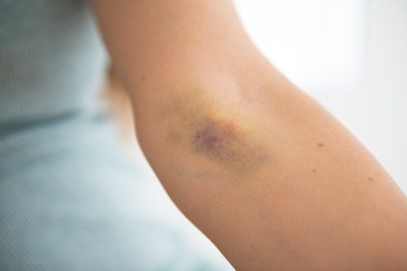 vena: Closeup on bruise hand of drug addict young woman