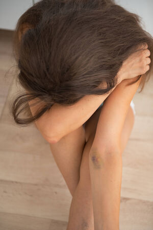 Drug addict young woman with bruise on hand sitting in kitchen Stock Photo - 28193849