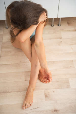 Drug addict young woman with bruise on hand sitting in kitchen Stock Photo - 28193850