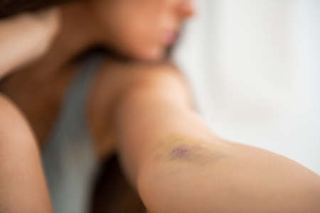 Closeup on drug addict young woman with bruise on hand Stock Photo - 28193852