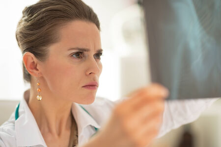 disquieted: Concerned medical doctor woman looking on fluorography Stock Photo