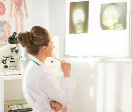 Medical doctor woman looking on fluorography on lightbox photo