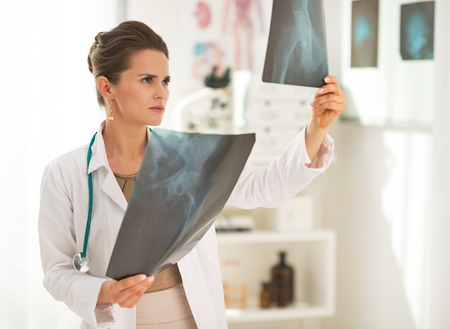 Doctor woman looking on fluorography photo