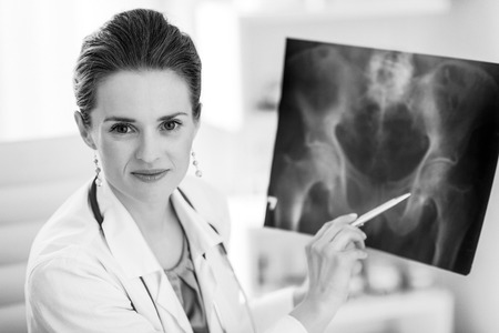 Portrait of doctor woman pointing on fluorography Stockfoto