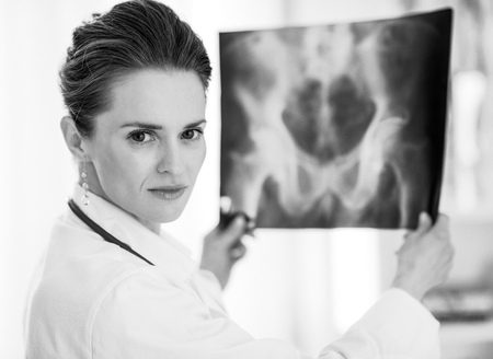 Portrait of medical doctor woman with fluorography