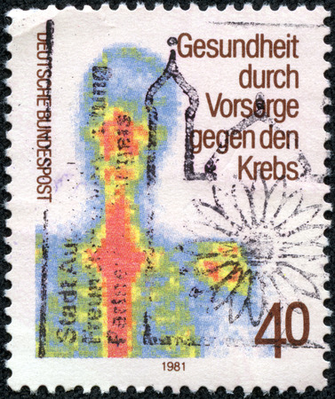 medical distribution: GERMANY - CIRCA 1981: a stamp printed in the Germany shows Chest scintigram, early examination for the prevention of cancer, circa 1981