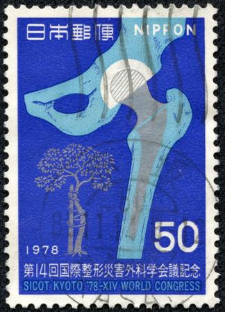 CHONGQING, CHINA - May 22, 2014:A postage stamp printed in Japan shows artificial joints, series  14th congress of SICOT, circa 1978. Editöryel