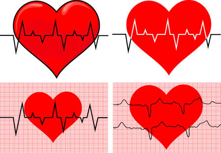 exercise silhouette: healthcare heart - EKG graph