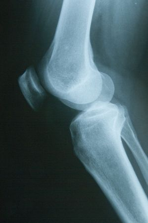 Knee X-ray on a black background Stock Photo