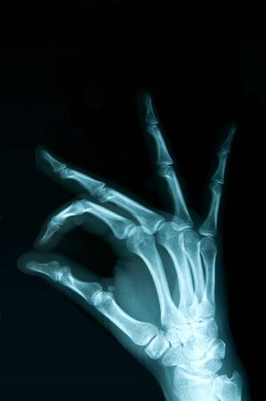 X-ray hand on a black background Stock Photo