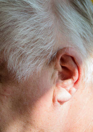 Left ear of a gray-haired elderly man with hearing loss, hearing problems, the concept of rehabilitation of old deaf people. Stock Photo