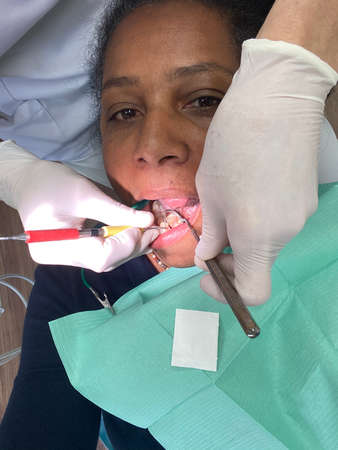 """woman with open mouth treating teeth with """"black stain"""" by dentist."""