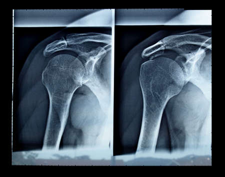 Medical X-Ray imaging of a shoulder, used in diagnostic radiology of skeleton bones photo