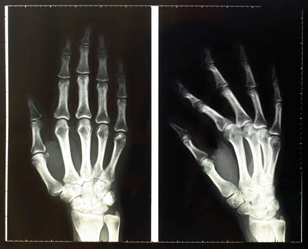 Medical X-Ray imaging of hand fingers used in diagnostic radiology of skeleton bones Stock Photo - 5710807