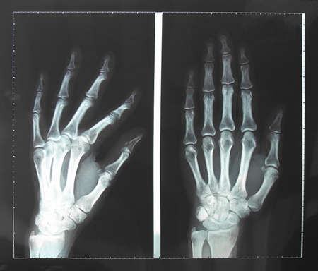 Medical X-Ray imaging of hand fingers used in diagnostic radiology of skeleton bones photo