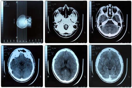 Medical X ray imaging of human brain skull bones photo