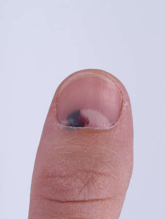 toenail: Subungual hematoma - collection of blood underneath fingernail (black toenail) medical condition. Aka runner or tennis toe