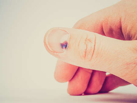toenail: Vintage looking Subungual hematoma - collection of blood underneath fingernail (black toenail) medical condition. Aka runner or tennis toe