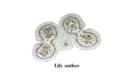 micrograph: Light photomicrograph of Lily anther cross section seen through microscope