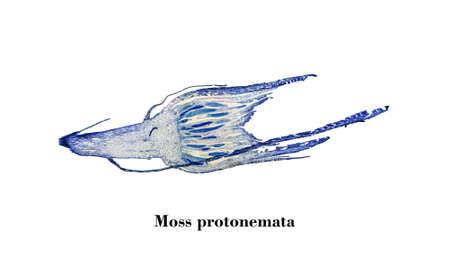 micrograph: Light photomicrograph of Moss protonemata whole mount seen through microscope