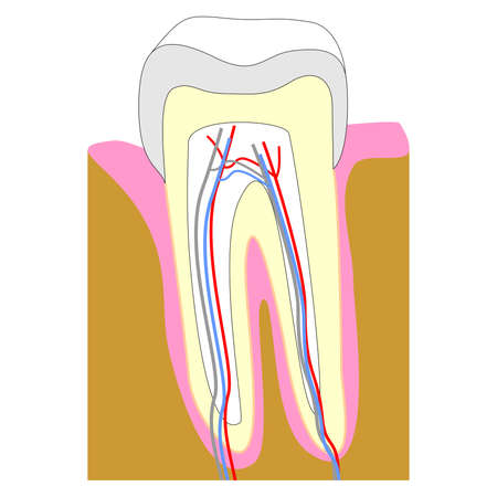 root canal: Tooth cross section showing teeth anatomy including enamel (grey), gum (pink), dentin (yellow), pulp in root canal (white), bone (brown)
