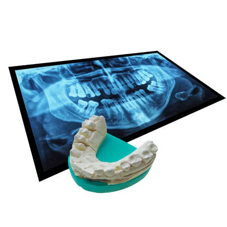 x rays negative: Medical X ray imaging of human teeth with positive dental mould reproduction cast formed from a negative dental impression of teeth isolated over white