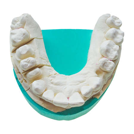 formed: Positive dental mould reproduction cast formed from a negative dental impression of teeth isolated over white