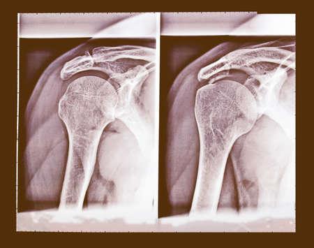 medical imaging: Medical X-Ray imaging of a shoulder, used in diagnostic radiology of skeleton bones vintage Stock Photo